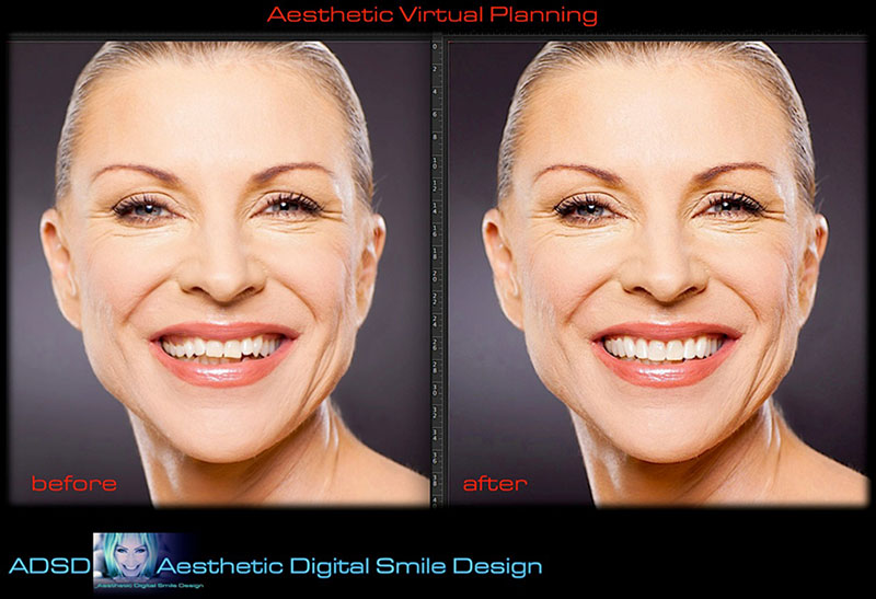 aestethic digital smile 1
