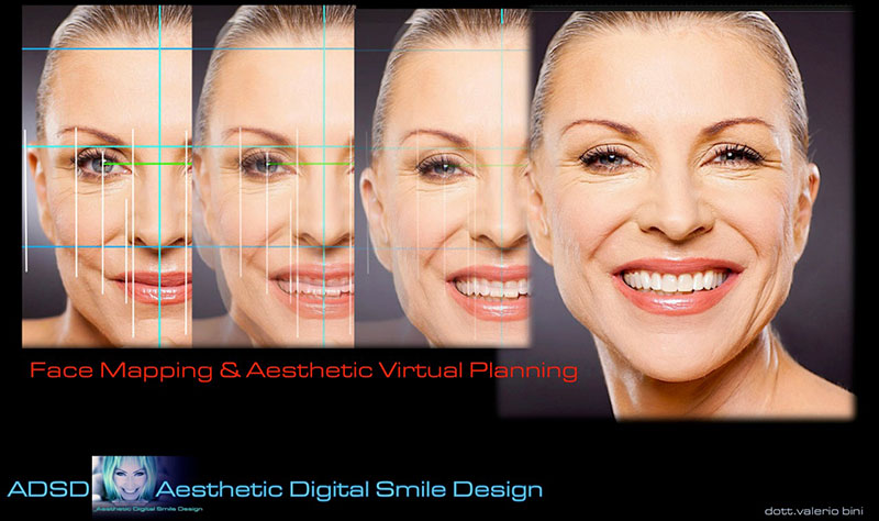 aestethic digital smile 2
